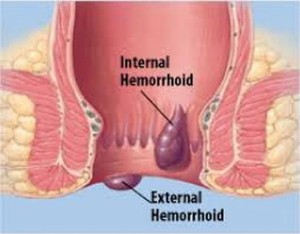 How To Get Rid of Hemorrhoids Fast Naturally